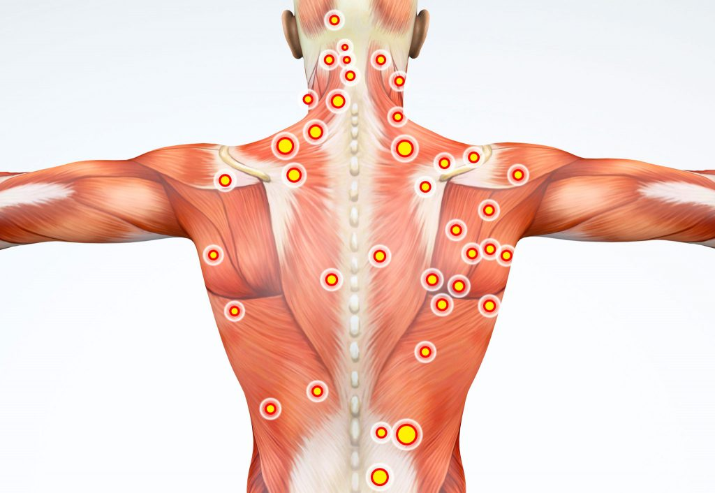 What Exactly are Trigger Points? Photo - Swedish Institute - New York, NY